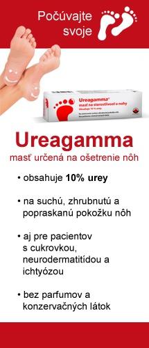 Ureagamma® - masť určená na oštrenie nôh